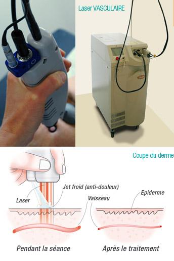 le laser colorant puls v beam est le laser de rfrence dans le traitement des angiomes plan selon les critres de lhas haute autorit de sant - Laser Colorant Puls